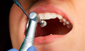 Чистка зубов НАДЕЖДА стома